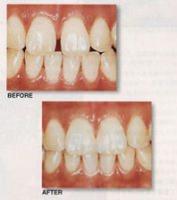 すきま治療の写真