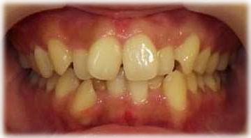 前歯にねじれや重なりがある状態です。