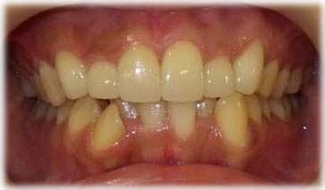 前歯のねじれや重なりをセラミッククラウンで改善した状態です。