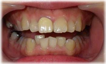 大きく前に出ている前歯の状態です。