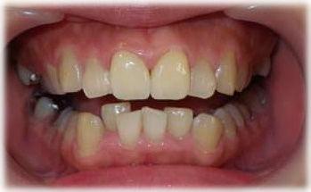 セラミッククラウンで前歯を小さく内側に入れた状態です。