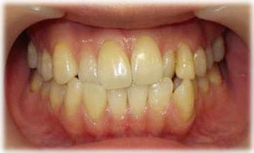 ねじれて重なりのある歯ならび