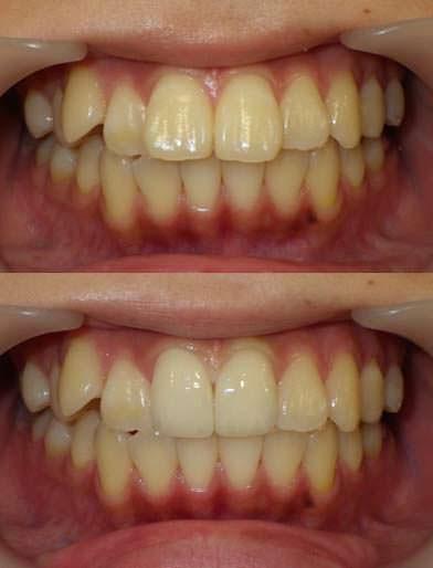 歯の大きさをセラミッククラウンで小さくした治療例です。
