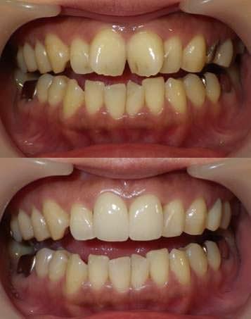 大きくねじれた前歯をセラミッククラウンで整えた写真です。