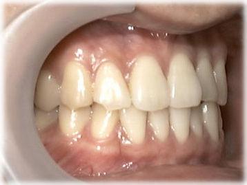 はぎしりで犬歯と手前の歯がけずれている状態の写真です(かんでいるところ)。