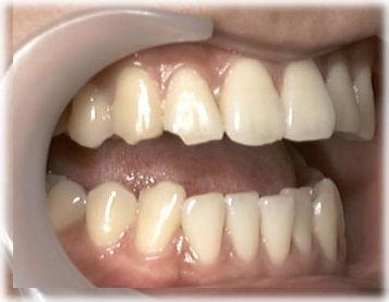 はぎしりで犬歯と手前の歯がけずれている状態の写真です(かるく口をあけたところ)。