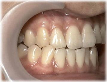 はぎしりで犬歯と手前の歯がけずれている状態の写真です(少しかみ合わせをずらしたところ)。