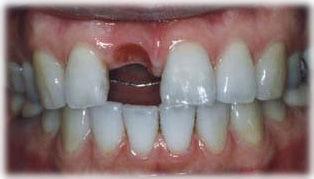 前歯のインプラントを行う前の写真です。