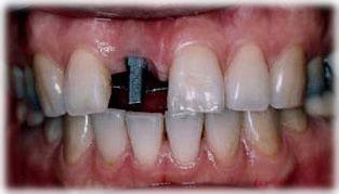 前歯のインプラントを植立した状態の写真です。