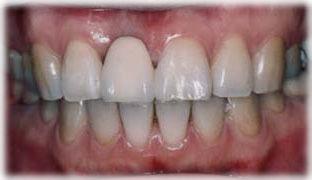 前歯のインプラントに上部構造を装着した状態の写真です。