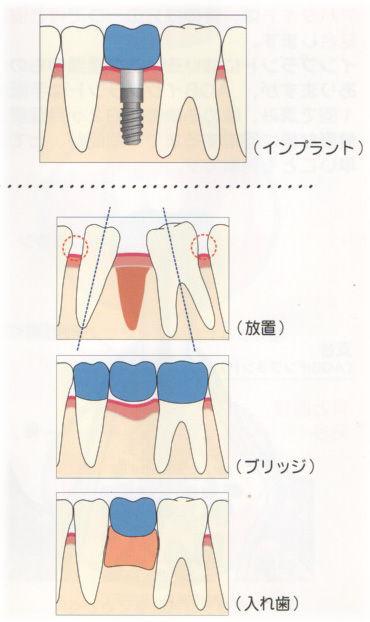 欠損に対するインプラントや義歯、ブリッジの模式図です。