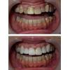 変色気味の歯をセラミッククラウンで改善した写真です(アイキャッチ画像)。