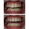 大きい歯をセラミッククラウンで小さくした写真です(アイキャッチ画像)。