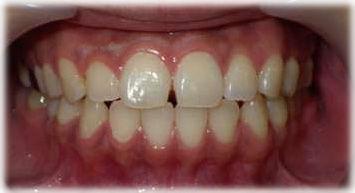 小さな歯のすきまを樹脂製材料で閉じる前の状態です。