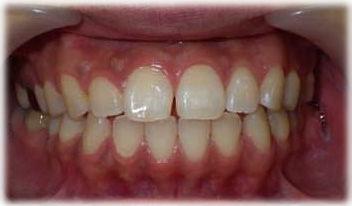 小さな歯のすきまを樹脂製材料で片方だけ閉じた状態です。