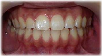 小さな歯のすきまを樹脂製材料で2本とも閉じた状態です。