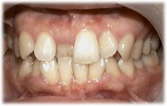 前歯が内側にある状態