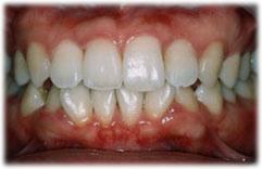 内側にあった歯が改善された状態