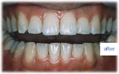 でこぼこしていた歯並びが改善された状態