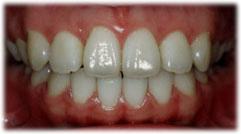 ねじれていた歯並びが改善された状態