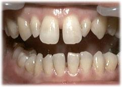 歯のすきま治療前の状態