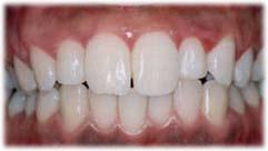 歯のすきま治療後の状態
