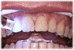 ホワイトニングジェルを塗布した歯表面に光を照射しているところです。