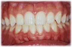 ホワイトニングを行って歯の色が明るくなった状態の写真です。
