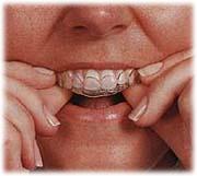 マウスピースを歯に合わせて挿入している写真です。
