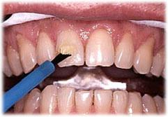歯表面にホワイトニングジェルを塗布しているところです。