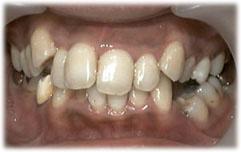 矯正治療前の歯列不正