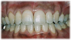 矯正治療により歯列不正が改善された状態