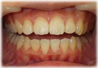 改善された歯ならび