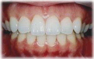 ホワイトニングでずっと白い歯