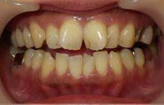 大きくねじれた前歯