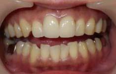 大きくねじれた上前歯をセラミッククラウンで整えた写真