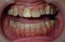 変色している歯