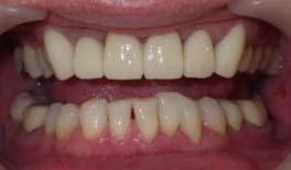治療後の前歯