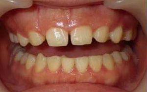 歯のすきま治療