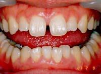 歯の間にすきまがある状態