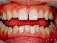 歯のすきまを閉じた状態
